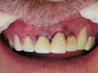 Dr. Schoonover -- Bone Graft, Mini Implant and Crown (After)