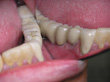 Dr. Schoonover -- Mini-Implant Crowns (After)