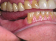 Dr. Schoonover -- Mini-Implant Crowns (Before)