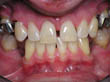 Dr. Schoonover -- Implant Crowns (Before)